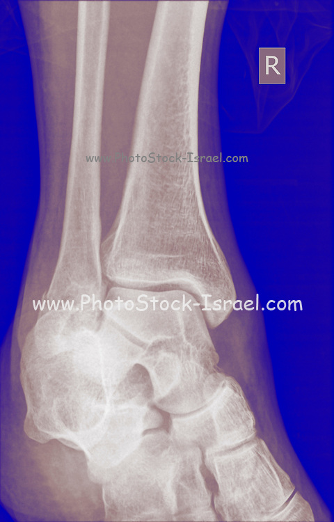 X-ray of a 43 year old male patient with a fracture in the distal radius