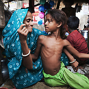 Mahmuda with her mother. They live in a shack next to the rail tracks in Tejgaon, Dhaka, Bangladesh. Mahmuda is 9 years old and lost a leg i 2008 in a train accident. She had a train accident previously which damaged her hering and when she did not hear the train coming when she was playing on the tracks.