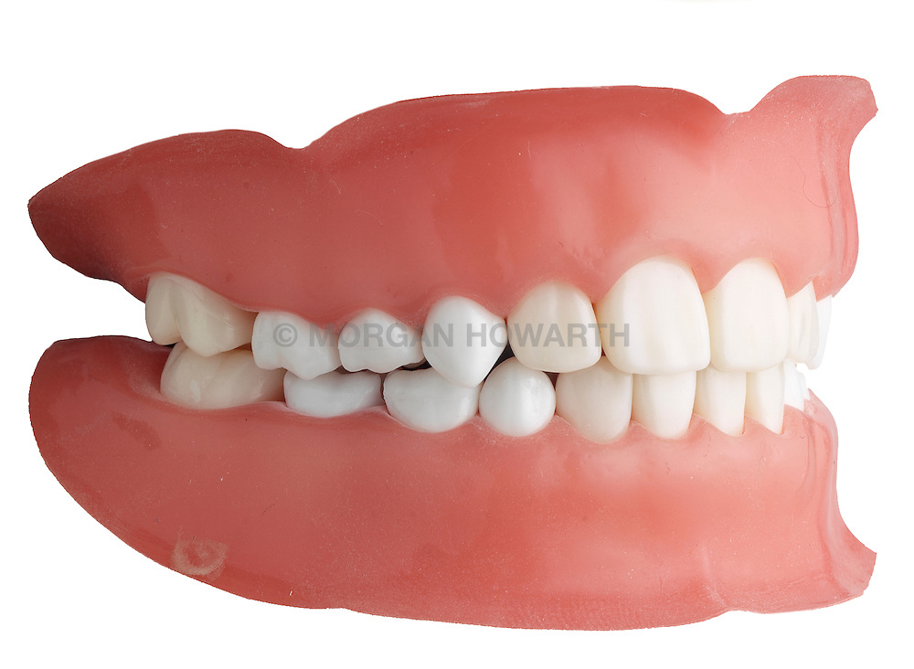 teeth 008 Teeth Dentures