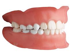 teeth 008 Teeth Dentures