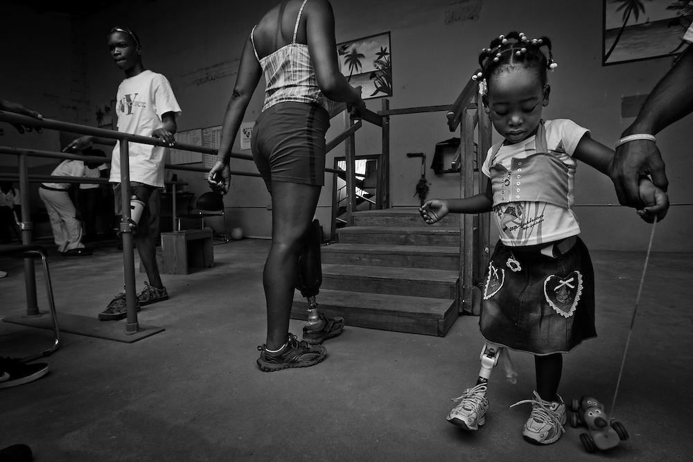 """Claudia Romain, 2 1/2 years old, lost her right leg from the earthquake, undergoes physical therapy at Healing Hands Haiti Clinic. <br /> <br /> Healing Hands Haiti (HHH) in Port Au Prince has been established for 12 years since 1999. Currently, HHH is constructing a new facility in Port Au Prince because their old clinic was destroyed from the earthquake.   HHH provides physical therapy, counseling, prosthetics, and support for free or very little cost to Haitians.  Their funding comes from private donations and organizations such as Handicap International, Mission Europeene Aide Humanitarian, International Committee of the Red Cross (ICRC), American Red Cross, Newman's Own, Direct Relief International (DRI), SOROS Open Society Foundation, and USAID which pays for employees, doctors, supplies, and facilities.  The motto of HHH is """"to serve the people of Haiti is to enable them to help themselves.""""   Thus, most of their employees are Haitians with very few foreign expats. Furthermore, HHH recruits and teaches young Haitian students prosthetic and orthotic skills and physical therapy in a specialized program that will enable them to earn a degree approved by World Health Organization."""