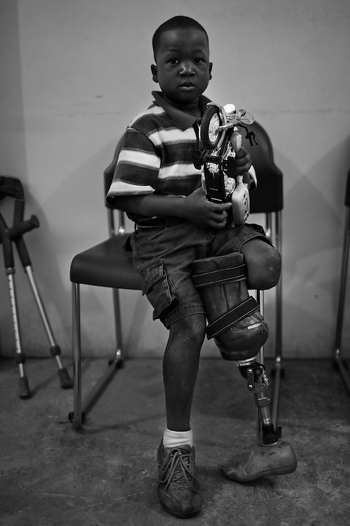 """Sebastien, 7 yrs. old, lost his left leg from the earthquake, holds his motorcycle toy as he waits for his physical therapy to begin. <br /> <br /> Healing Hands Haiti (HHH) in Port Au Prince has been established for 12 years since 1999. Currently, HHH is constructing a new facility in Port Au Prince because their old clinic was destroyed from the earthquake.   HHH provides physical therapy, counseling, prosthetics, and support for free or very little cost to Haitians.  Their funding comes from private donations and organizations such as Handicap International, Mission Europeene Aide Humanitarian, International Committee of the Red Cross (ICRC), American Red Cross, Newman's Own, Direct Relief International (DRI), SOROS Open Society Foundation, and USAID which pays for employees, doctors, supplies, and facilities.  The motto of HHH is """"to serve the people of Haiti is to enable them to help themselves.""""   Thus, most of their employees are Haitians with very few foreign expats. Furthermore, HHH recruits and teaches young Haitian students prosthetic and orthotic skills and physical therapy in a specialized program that will enable them to earn a degree approved by World Health Organization."""