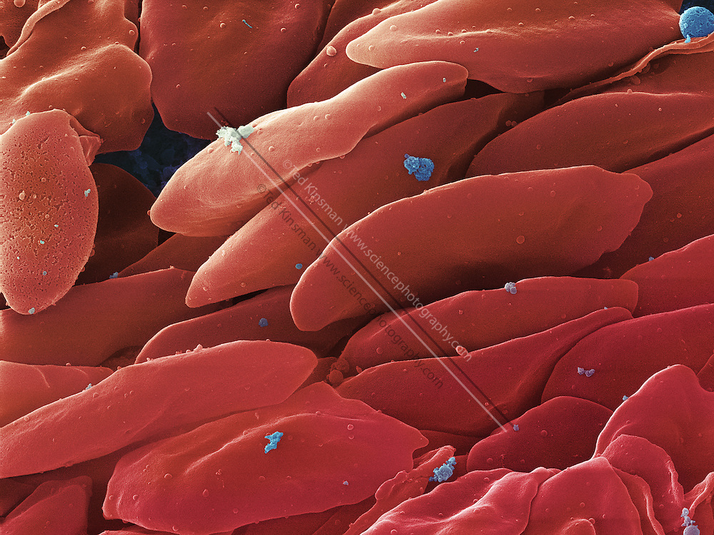 An SEM image of Human blood platelets in the process of clotting.  This sample was taken from the root of a tooth from an 18 year old male during oral surgery.  Magnification is x6530 when printed 10 cm wide.