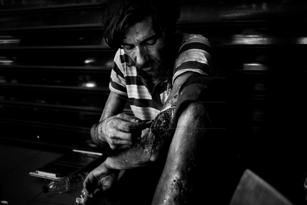 """Athens, Greece - Drug addict in the centre of Athens. Since the financial crisis started,  the number of drug addicts and people sick with tuberculosis and HIV has increased of over 50% in the historical center of Athens. Greek economical crisis started in 2008. The so-called Austerity measures imposed to the country by the """"Troika"""" (European Union, European Central Bank, and International Monetary Fund) to reduce its debt, were followed by a deep recession and the worsening of life conditions for millions of people. Unemployment rate grew from 8.5% in 2008 to 25% in 2012 (source: Hellenic Statistical Authority). <br /> Bruno Simões Castanheira"""
