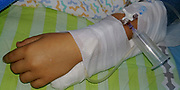 A child is connected to an intravenous infusion before an operation