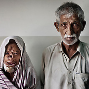 24 May 2007 - Islamabad, Pakistan - A woman with her husband in a hospital in Islamabad Pakistan where she sought treatment for her burns.  Acid throwing is a particulary vicious and damaging form of violence most commonly against women and children.  An acid attack has catastrophic effects on the human body causing permanent disfigurement.  Photo Credit: Lori Hawkins