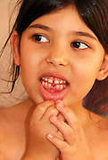 Young girl of five shows her missing tooth