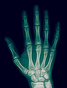 x-ray of the right hand of a 14 year old male with a fracture in the number 3 metacarpal bone
