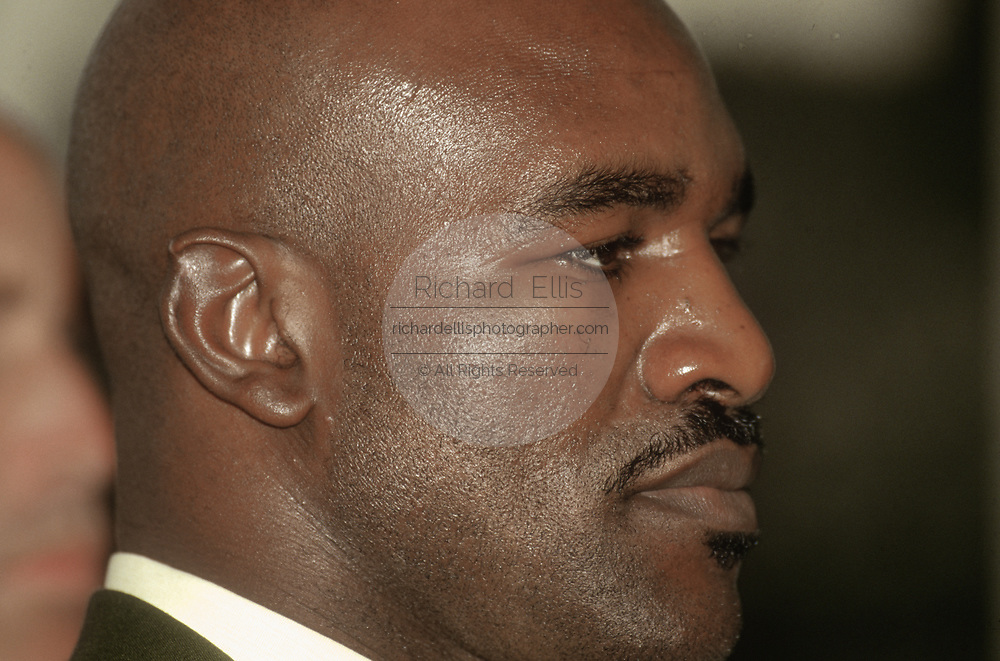 WASHINGTON, DC, USA - 1997/07/24: Bite mark scar on the ear of World heavyweight champion boxer Evander Holyfield as he participates in an event on the values of fatherhood with Speaker Newt Gingrich on Capitol Hill July 24, 1997 in Washington, DC.    (Photo by Richard Ellis)