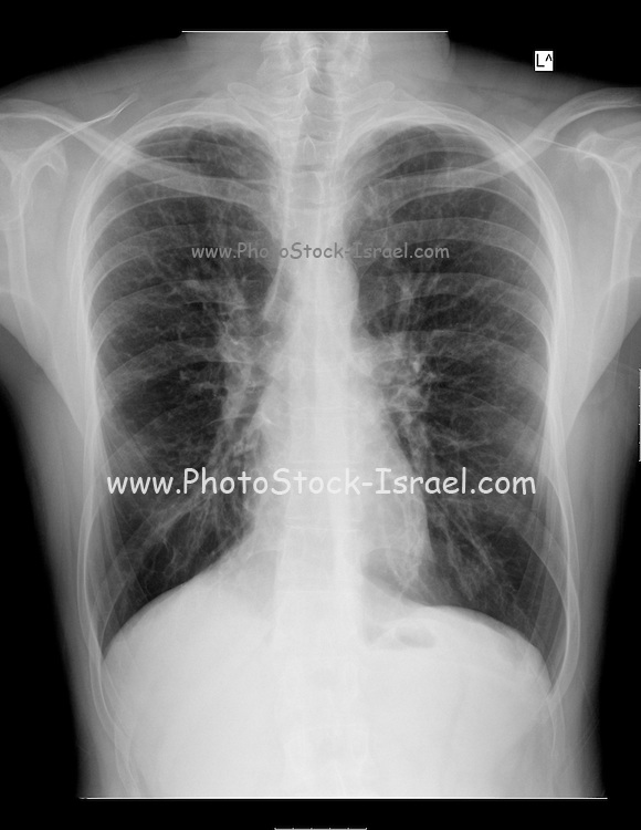 Chest X-ray of a 28 year old male patient suffering from Dyspnea due to Cystic Fibrosis and drug induced Osteoporosis