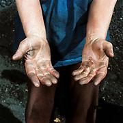 Charcoal burner's hands, Viscri, Saxon Transylvania, Romania.