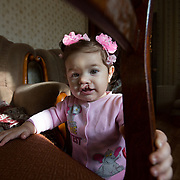 """CAPTION: Stella explores the living room in her Volgograd flat. Her mother knew during her pregnancy that she would be born with a cleft lip, as an ultrasound scan picked it up. """"We decided to continue with the pregnancy regardless"""", Armena relates. """"I was told by the doctor that I would be able to get a good result from an operation in Volgograd, so that calmed me down a lot"""". LOCATION: Volgograd, Russia. INDIVIDUAL(S) PHOTOGRAPHED: Stella Aharonyan."""