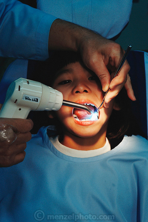 A dentist works on Maya Ukita's teeth, hardening plastic cavity filler with ultraviolet light. Kodaira City, Japan. Material World Project. The Ukita family lives in a 1421 square foot wooden frame house in a suburb northwest of Tokyo called Kodaira City.