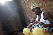 Mohammed Surajo, 30, is holding his only daughter, Naimaatu Surajo, 4, a girl suffering from permanent brain damage and blindness, in Abare, a village affected by lead poisoning due to the unsafe techniques employed for extracting gold, in Zamfara State, Nigeria. His wife Asnya lost six children: two miscarriages, and four while very young. Only her daughter Surajo was saved, but she survives as a suffering victim of lead pollution in the area. It is caused by ingestion and breathing of lead particles released in the steps to isolate the gold from other metals. This type of lead is soluble in stomach acid and children under-5 are most affected, as they tend to ingest more through their hands by touching the ground, and are developing symptoms often leading to death or serious disabilities. Nearby, in Anka, doctors from Médecins Sans Frontières (MSF - Doctors Without Borders) are treating serious cases of lead poisoning, referred to them by local clinics in the surrounding villages. The treatment with MSF starts when blood lead level (BLL) samples reach 45 micrograms per decilitre. The Centers for Disease Control and Prevention (CDC) states that a BLL of 5 ?g/dL or above is a cause for concern. The cycle of medicines lasts for 20 days. After that, the child's blood is tested and a new round of treatment is provided. Treatment can last years, as lead is reduced in the blood, but it persists noticeably within the bones, especially if the patients return to the same polluted environment. Remediation of the affected villages, a campaign of awareness, and the introduction of safer mining techniques are pivotal to the long-term solution of a hazardous trend that has already killed over 460 children, and it is bound to grow in size, alimented by the ever-rising price of gold.