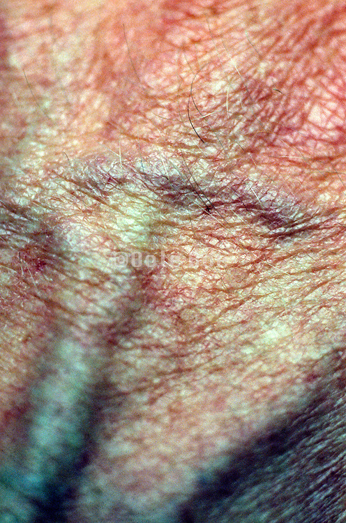close up of skin of the hand