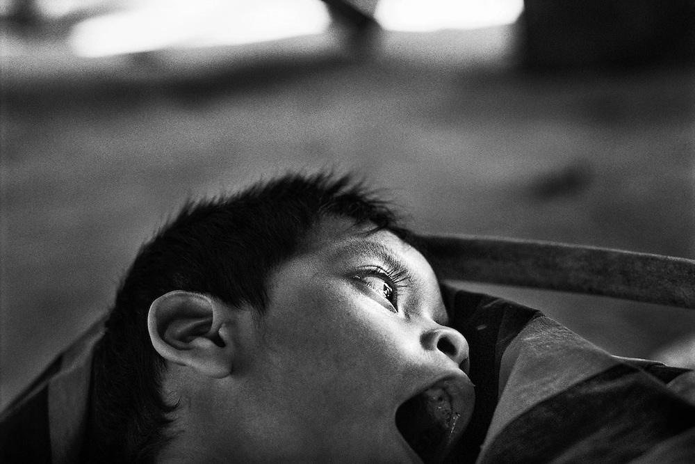 French guiana, cayode, maroni.<br /> <br /> Impregnation mercurielle : malformations congenitales. <br /> Les symptomes se traduisent a court terme, par une reduction du champ visuel, une baisse de l'acuite auditive, des troubles de l'equilibre et de la marche. A plus long terme, les personnes exposees souffrent d'encephalopathie, d'une deterioration intellectuelle, de cecite et de surdite. La population la plus exposee est celle des jeunes enfants, mais c'est au stade fœtal que l'infection est la plus profonde car irreversible et difficilement decelable.<br /> Cette contamination se revele tres pernicieuse. On a pu mesurer, lors de precedents, l'etalement dans le temps des consequences sanitaires du mercure. En 1932, des quantites de mercure avaient ete rejetees progressivement dans les eaux de Minamata au Japon. Ce n'est que 23 ans apres que sont apparus les premiers cas de deces et une anormale multiplication de handicaps physiques et de malformations fœtales. A Cayode, le regain de l'activite aurifere remonte a 1995. Cet enfant de 6 ans n'a aucune mobilite.