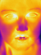 A Thermogram of a young girls face.  The different colors represent different temperatures on the object. The lightest colors are the hottest temperatures, while the darker colors represent a cooler temperature.  Thermography uses special cameras that can detect light in the far-infrared range of the electromagnetic spectrum (900?14,000 nanometers or 0.9?14 µm) and creates an  image of the objects temperature..
