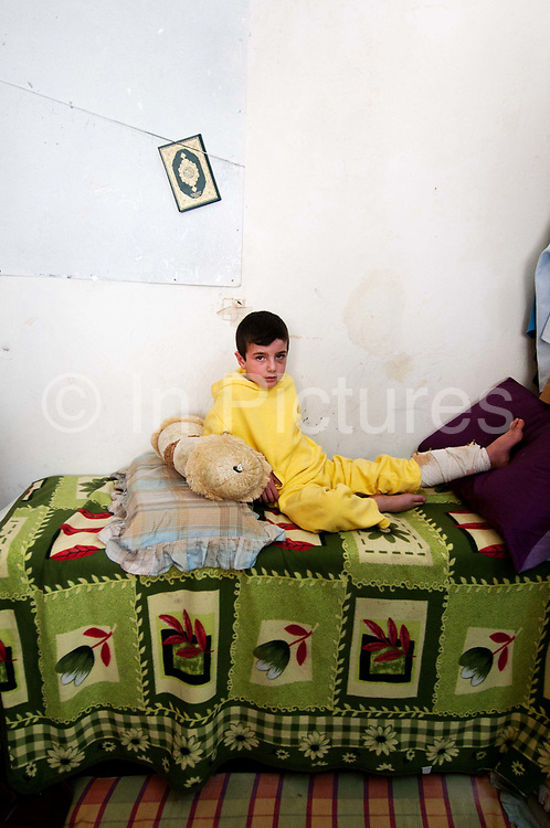Jordan . Amman. Refugees from Syria. April 15th 2013. Kareem aged 6 , injured in a car accident. He is in the room where 18 people sleep.