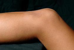 01-02-2007 VOLLEYBAL: SPIEREN EN GEWRICHTEN: LICHTENVOORDE<br /> Medisch gewrichten en spieren die kwetsbaar zijn in de volleybalsport / Knie en been<br /> ©2007-WWW.FOTOHOOGENDOORN.NL