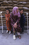 Nasima with her children Salima and Ajmal.<br /> Nasima, a widow, was injured when a rocket landed on her home during fighting between Mujihadeen factions.