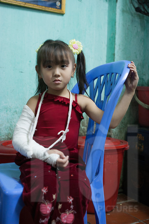 Portrait of a young girl wearing a cast on her arm and looking to the camera with a sad expression, Hanoi, Vietnam, Southeast Asia