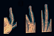 3 views of the forth finger right hand after suffering Contusion with abrasion. No fracture or dislocation seen