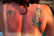 Glastonbury Festival, 2015.  Woman festival goer with sunburned back and tattoos.<br /> Sunburn is a form of radiation burn that affects living tissue, such as skin, that results from an overexposure to ultraviolet (UV) radiation, commonly from the sun.  Excessive UV radiation is the leading cause of primarily non-malignant skin tumors.[
