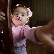 RUSSIA (SmileTrain) – Christmas comes early for Russian cleft patients