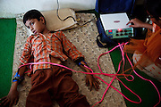 A disabled boy receiving muscular therapy inside Chingari Trust, the local NGO caring for disabled  children in Bhopal, Madhya Pradesh, India, near the abandoned Union Carbide (now DOW Chemical) industrial complex.