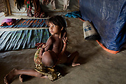 A girl holds her baby brother in her family's home in  Modurchara, Camp 5, part of the refugee camp sheltering over 800,000 Rohingya refugees, Cox's Bazar, Bangladesh, June 4, 2018. And with inundation, there looms the risk of the next big killer: waterborne diseases, such as cholera.