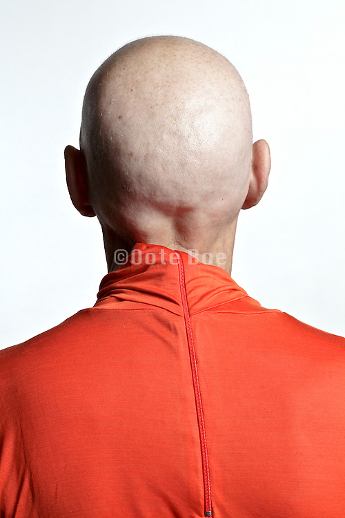 woman that lost her hair after chemotherapy treatment