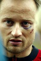 Fotball, 27. april 2004, Trening landslaget herrer,  Sigurd Rushfeldt, Norge  med blåveis under øyet