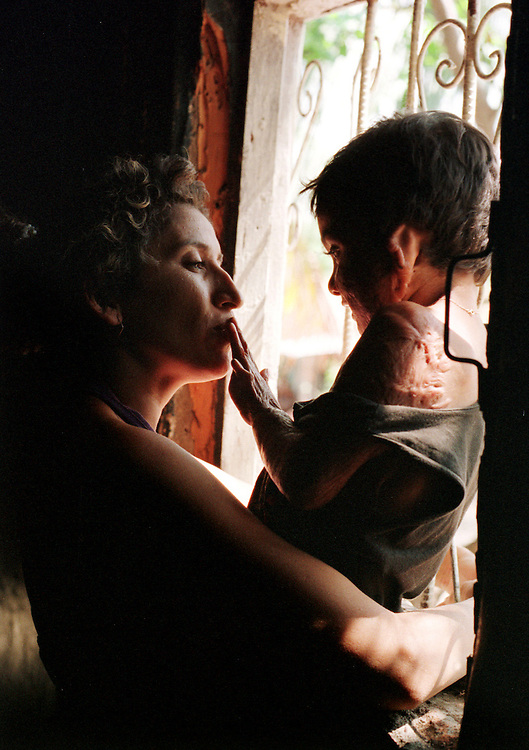 Three-year-old burn victim Junior Gutierrez plays affectionately with his mother Margine at their home in Dario, Nicaragua as he is about to embark on a six-month journey to the United States to have plastic surgery through Healing the Children.