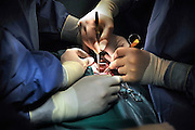 Nederland, Nijmegen, 26-2-2009Chirurgen voeren een borstoperatie, hartoperatie, uit in het UMC radboud.RadboudUMCFoto: Flip Franssen