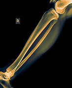 X-ray of the lower leg 50 year old male with a fractured tibia front view