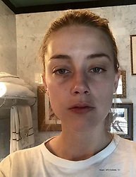 """These harrowing photographs show injuries Amber Heard claims she sustained at the hands of her then-husband Johnny Depp after telling him she was going to leave him. The photos — filed at a court in Virginia by Heard's legal team — form part of a bombshell dossier as a rebuttal to Depp's $50million defamation lawsuit against his former wife. Graphic images show Amber with facial abrasions, bruises, and clumps of hair missing following an incident which allegedly happened days before Christmas in Los Angeles in December 2015, just nine months after the pair married. In the deposition Amber, 32, claims Depp, 55, attacked her at their Los Angeles penthouse before friends were due to arrive She claims that at one point he dragged her by the hair, onto their marital bed, and beat her while screaming: 'I'll f*****g kill you, you hear me?' Describing what happened next, Heard claims in the legal document: 'Hoping to avoid the violence, I tried to calm Johnny down, and then went upstairs to try to remove myself from the situation. 'Johnny followed me, hit me in the back of my head, grabbed me by my hair again, got in front of me on the steps, and then dragged me by my hair up the last few steps. 'At the top of stairs, Johnny shoved me twice, which made me fear I would fall. I told Johnny that he had broken my wrist in an attempt to get him to stop. 'Johnny kept hitting me, and each time he knocked me down, I chose to react by simply standing up and looking him in the eye. Johnny responded by yelling: """"Oh, you think you're a f***ing tough guy?"""" 'He reeled back and head-butted me in my face, bashing my nose, which immediately began bleeding, sending searing pain through my face. I instantly started tearing up, and I thought that I would have to go to the hospital. 'I told Johnny I wanted to leave him, and that I would call the police if he ever touched me again. When I began to walk away toward the guest apartment, he responded by pushing me, then grabbed me a"""