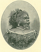 Julia Pastrana the Mexican bearded woman (1834-1860). She suffered from congenital hirsutism combined with gingival hyperplasia.  Displayed in the US as a circus attraction and the result of union between a woman and a bear, her manager made her pregnant and sold tickets for people to observe the birth. A boy was born but died and the mother also died within a few days.