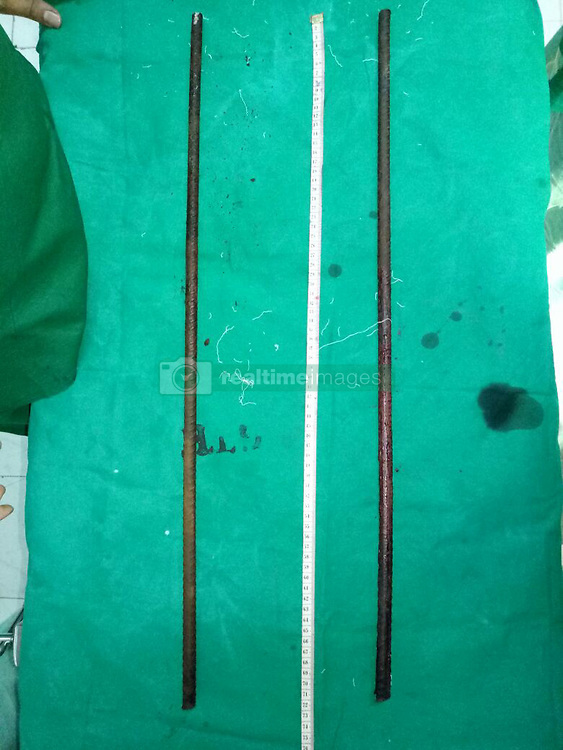 """EXCLUSIVE: Indian doctors have saved the life of a 21-year-old man who fell off an under construction building and got himself impaled on iron rods that pierced though his chest that miraculously missed his heart but puncturing the liver. The incident happened on January 12 around 7pm when Rajendra Pal, a construction worker from West Bengal, slipped and fell off the roof of a building at a construction site in Nariman Point, Mumbai. Fortunately, Pal did not suffer any fatal injuries as the rods did not puncture most of his vital organs. Hearing the loud thud and the cries of Pal, his fellow workers rushed to the spot. They soon informed the police and fire brigade about the accident. The rescue time arrived at short notice, cut the rods off the pillar and managed to rush him to the state-run GT hospital. According to the hospital authorities, the rods had caused penetrating trauma to chest and abdomen, patient was rescued by fire brigade after cutting the 12mm construction iron rods. Dr Jitendra Sankpal, senior surgeon at GT hospital, said: """"The patient was conscious when he was brought to the hospital. Two 5-ft-long iron rods pierced his abdomen and chest. However, the man was lucky as the rods did not puncture his lungs or other vital organs. When the patient was brought in, his condition was critical. On inspection, we discovered there were two 12mm iron rods, each 75cm long had penetrated through his chest and upper abdomen. According to the doctors, the first one had entered from right anterior axillary line subcutaneously to the upper side of left chest. Clothes were stuck inside the entry point of rod. The second rod had penetrated from right posterior axillary line through seventh intercostal space to epigastric region. """"It was a very difficult operation. The first rod that came out though his chest barely missed the patient's heart by 1 inch. We started the operation at 10pm and concluded it at 1am. The patient's vitals are normal and he is out of da"""