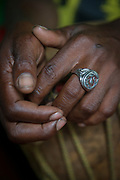 Close-up of the hand of a person with a ring, Little Corn Island, Nicaragua