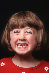 Portrait of young girl with missing teeth smiling,