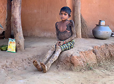 Rare genetic disorder turns 10-year-old tribal girl's skin into tree bark - 17 Jan 2020