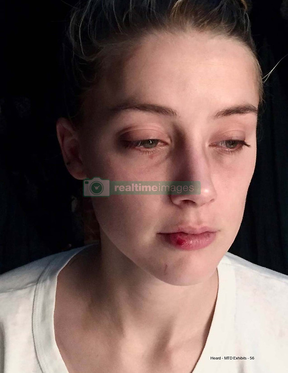 """Johnny Depp has admitted to 'accidentally' headbutting Amber Heard during a heated argument at their Los Angeles penthouse back in 2015. Depp made the revelation as he took the stand on the third day of his libel case against The Sun newspaper at the High Court in London on Thursday 9 June. The court was also show photographs of Heard's purported injuries at the hands of Depp. Last year the photographs of Heard's injuries were included in a bombshell dossier at Fairfax County Court in Virginia, filed by Heard's legal team on April 11, 2019, as a rebuttal to Depp's $50million defamation lawsuit against his former wife. At the time the photos were first released, Depp dismissed the court document as 'new lies'. In court on Thursday in the London hearing, NGN's barrister Sasha Wass QC asked why Depp had not mentioned 'accidentally' headbutting Ms Heard in his witness statements to the court. Depp replied: 'Had I read the entire statement after the lawyers had drafted it, I would have found that missing piece. I didn't read all those things … and I trusted my attorneys had taken my statement and put it on the record.' Depp reasoned that he used the word 'headbutt' because that was the way Heard had referred to it. He told the court: 'I said """"I headbutted you in the forehead, that doesn't break a nose"""".' Ms Wass told the actor that he changed his account of the incident after only 'very recently' becoming aware of an audio recording of himself and Heard discussing the incident. But Mr Depp shot back: 'I believe she took something and stretched it out as far as she possibly could.' The graphic images show Heard with facial abrasions, bruises, and clumps of hair missing following the incident, which happened just nine months after the pair married. In the Virginia deposition from 2019, Heard claims that at one point Depp dragged her by the hair, onto their marital bed, and beat her while screaming: 'I'll f*****g kill you, y"""