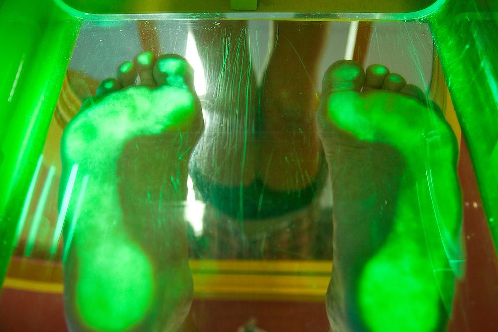 Nederland Leusden 22-08-2009 podotherapie rondom  Patient Peter Horst wordt behandeld door Monique Gouw  podotherapie, voetafdruk.podiatry, footprint. Marco Hofste / Hollandse Hoogte