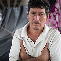 """Ricardo lost his house and belongings in Chamelecón during the double hurricane in Honduras """"I even lost my shoes"""" he said."""