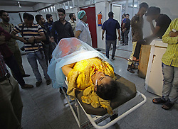 September 7, 2017 - Srinagar, India - An injured Kashmiri woman lying on a stretcher, is seen at the city's main hospital after a grenade attack in Srinagar on September 07. 2017. More than ten  people were injured when an unknown person hurled a grenade near Jehangir chowk in Srinagar, according to the police. (Credit Image: © Faisal Khan/Pacific Press via ZUMA Wire)