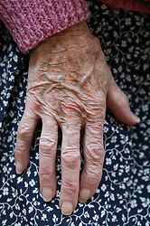 Close up of hand of an elderly woman; resting on her lap,