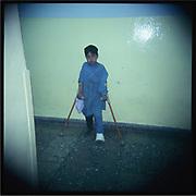 A mine victim in Kabul.