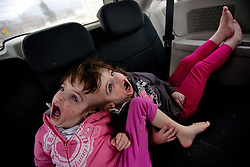 Four-year-old craniopagus twins Tatiana and Krista Hogan are seen during a road trip to see their many doctors in Vancouver, British Columbia, Canada, Feb. 28, 2011. The twins, born Oct. 25, 2006 to parents Felicia Simms and Brendan Hogan, are connected at the head and share a brain. Neurologists say the twins are the only such set that have a common neurological connection.