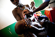 A child receives vitamin A supplements which have a dramatic effect on their longterm health.