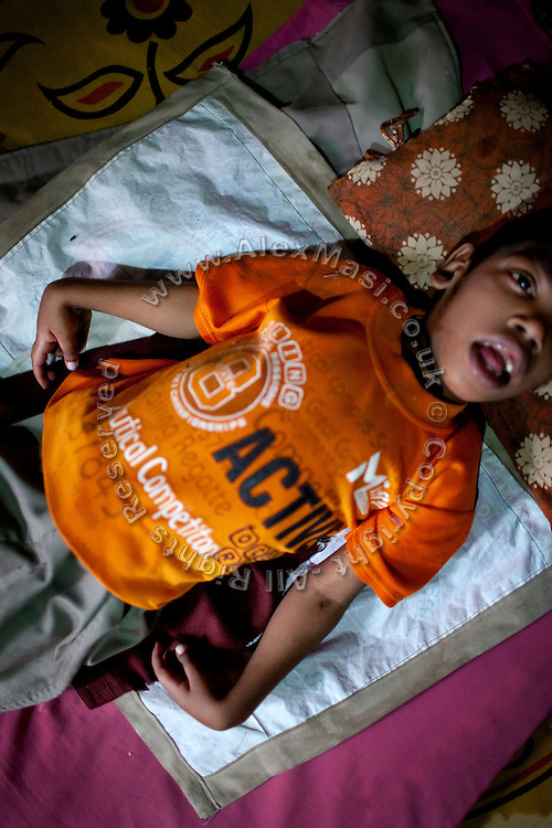 Rahil Ali, 7, a boy suffering from a severe neurological disorder, in lying on the floor of his home in Bhopal, Madhya Pradesh, India, near the abandoned Union Carbide (now DOW Chemical) industrial complex. Rahil lives with his father, Rashid Ali, 35, and his mute and deaf grandmother, Bano Bi Ali, 70, in a small, single room his father rents inside a larger house. Rahil's mother left the family three years ago, his father says, because of the hardship and stigma associated to birth defects in India. She took with her Rahil's two siblings, a sister now aged 6 and a brother aged 3, and remarried. In the past, Rashid and his now ex-wife had no choice but to feed the family on contaminated water for a period about six years, in which all three children were born. But while his siblings appear to be healthy to this day, Rahil was diagnosed with torch infection and Lissencephaly after a CT scan was made of his brain soon after his birth. The latter disorder is incurable, and children in similar conditions to Rahil's have a average life expectancy of less than ten years.
